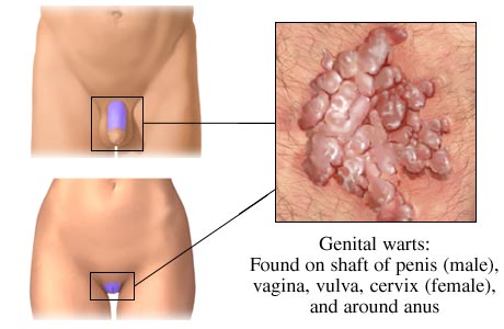 genital warts picture diagram