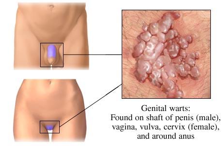 genital warts picture diagram