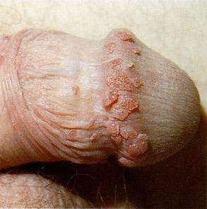 genital warts around the male penis head