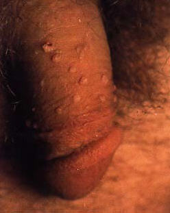genital warts spread out over the penis