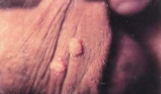 genital warts picture