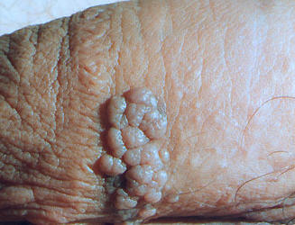 genital warts clustered on the penis