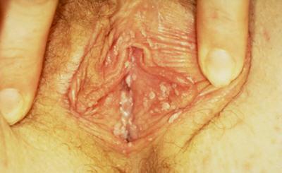 vaginal warts genital warts in the vagina