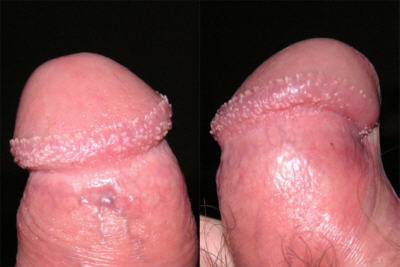 pearly penile papules are NOT genital warts
